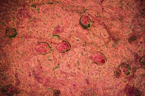 Sykdommen nyretuberkulose: Diagnose og behandling