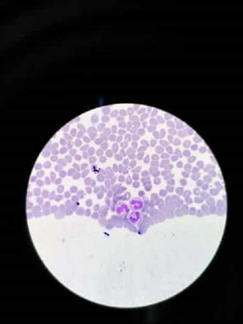 Behandlinger for sykdommen agranulocytose