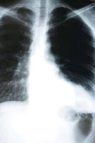 Lær hvordan kroppen påvirkes av lungebetennelse