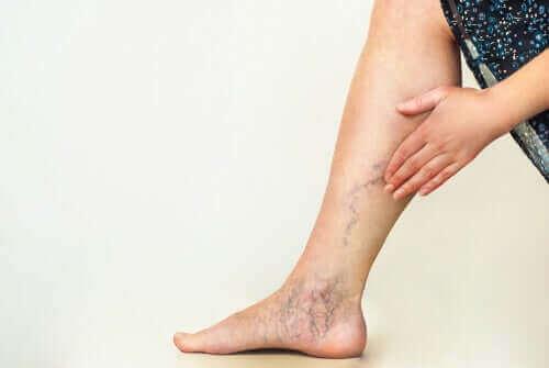 Åreknuter på noens beins