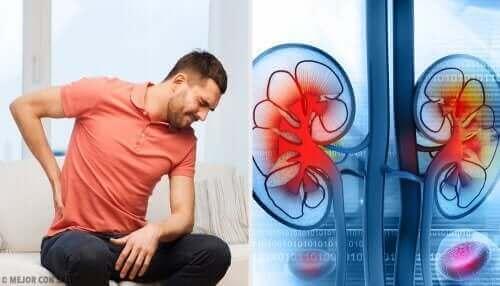 En mann med ryggsmerter på grunn av en nyreinfeksjon.