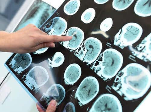 Et røntgenbilde av et hode.