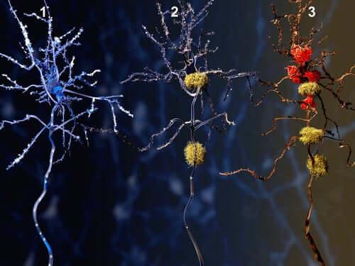 Illustrasjon av fasene av Alzheimers og virkningene av donepezilhydroklorid.
