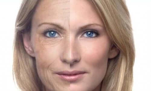Før-og-etter bilde av hude til en kvinne