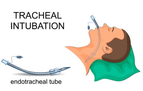 Endotrakeal tube.