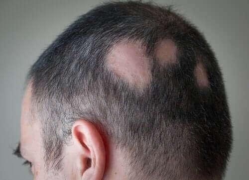 En mann som har mistet håret noen steder på hodet