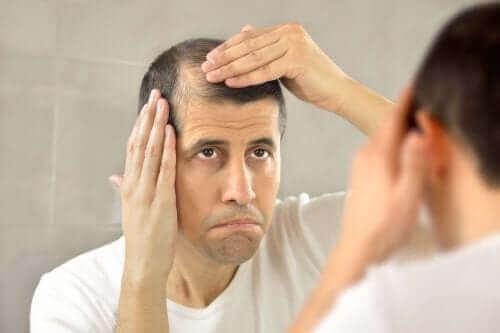 Medisinen minoxidil behandler hårtap