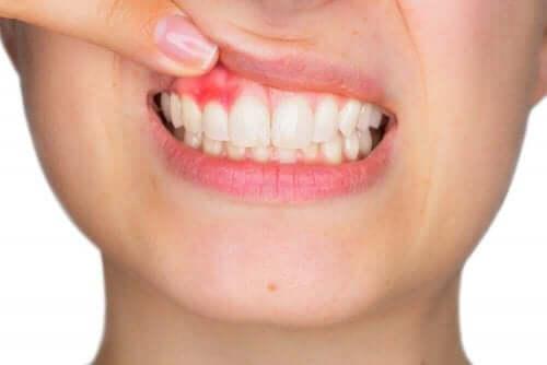 Å bruke munnskyllevann kan hjelpe mot tannkjøttbetennelse.