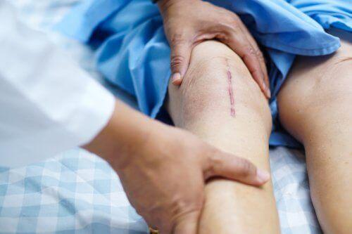 Restitusjon etter en kneproteseoperasjon