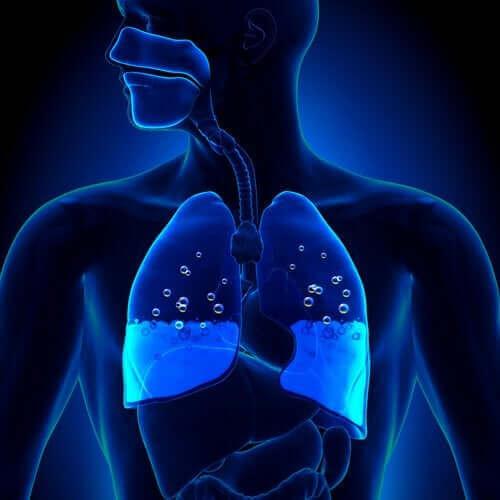 Årsaker og symptomer på lungeødem