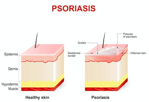 En illustrasjon av psoriasis.