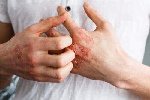 Hva er hudlidelsen atopisk dermatitt?