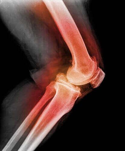 Lær alt om dislokasjon av kneskålen