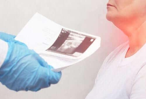 Skjoldbruskknuter: symptomer og årsaker