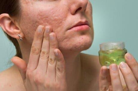 aloe vera-gel renser og bekjemper akne og er bra for huden