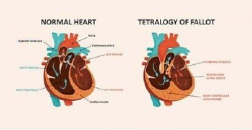 Diagram hjertesyndrom.