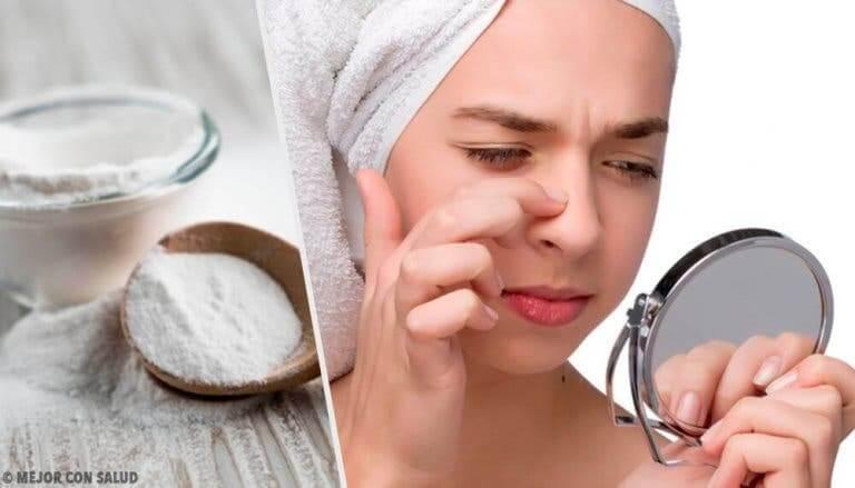 Naturlige behandlinger med natron