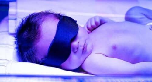 Gulsott hos nyfødte behøver ikke være alvorlig.