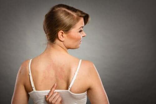 Kvinne med utslett på ryggen
