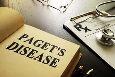 Pagets sykdom – alt du trenger å vite