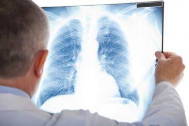 Et røntgenbilde av brystet