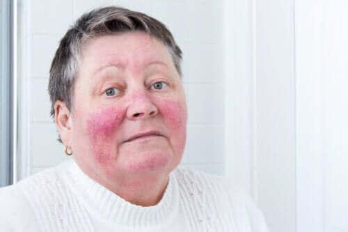Årsaker til og symptomer på rosacea