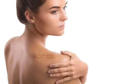 En kvinne med et arr på skulderen