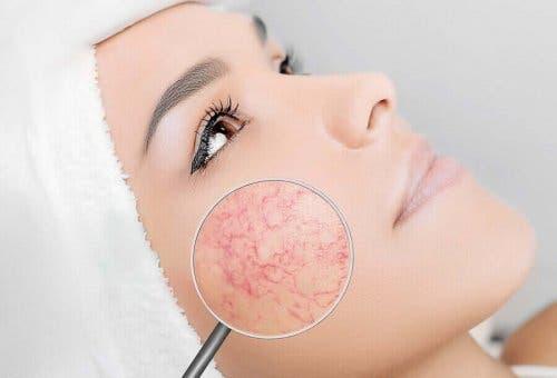En kvinne med synlige blodkar i ansiktet.