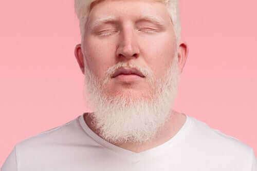 En mann med albinisme.