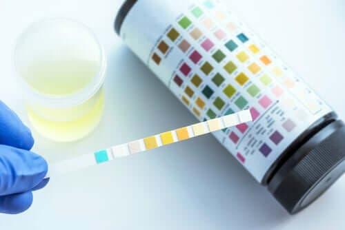 Hva kan oppdages med en urinanalyse?