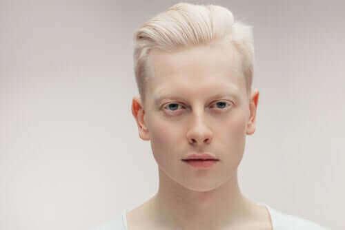 Alt du behøver å vite om albinisme