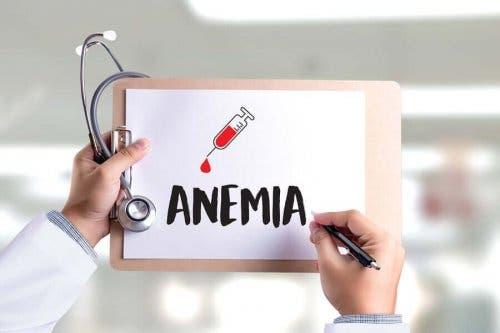 Ordet anemi skrevet på et stykke papir på en utklippstavle.