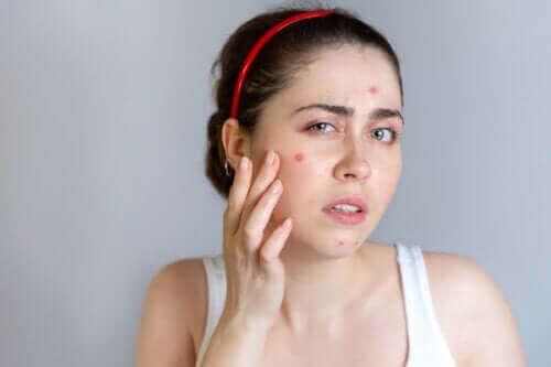 De beste behandlingene mot akne