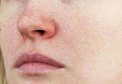 Hudtilstanden couperose: Egenskaper og behandlinger