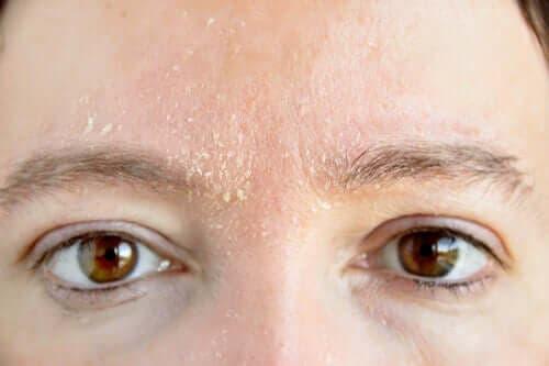 En kvinne med flassende hud i ansiktet