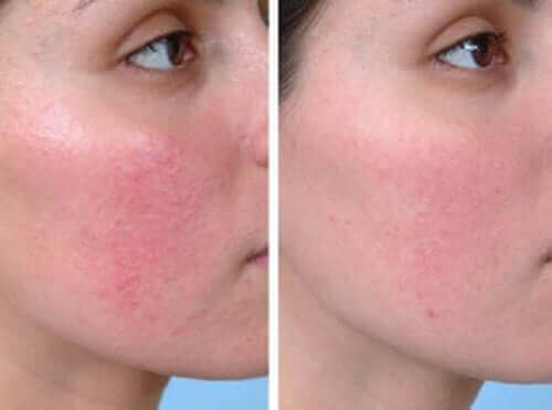 Et før og etter bilde av en kvinne som har blitt behandlet for rosacea