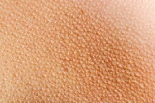 Piloereksjon – Det vil gi deg gåsehud