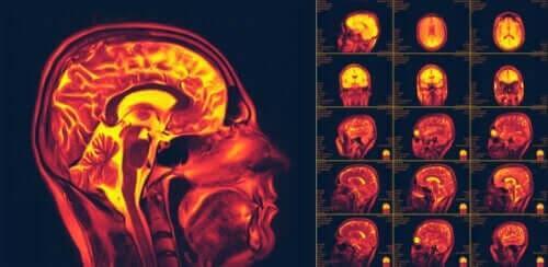 Hva er nevroplastisitet i hjernen?
