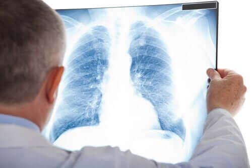 Lege med røntgen.
