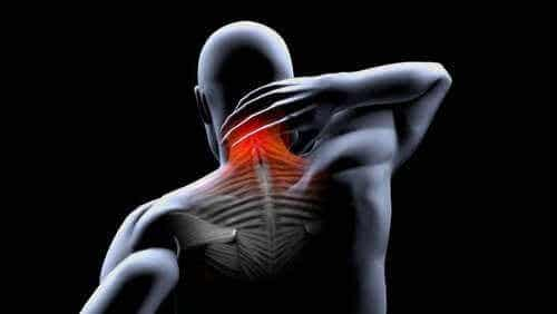 Behandling og forebygging av muskelkontrakturer