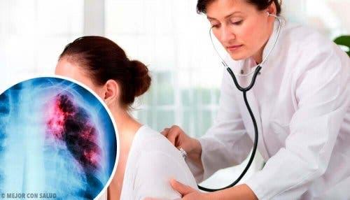 Røntgen av en lungeknute.
