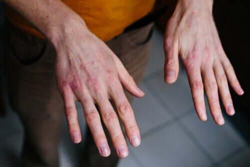Tørre og sprukne hender: Beskyttelse fra kulden