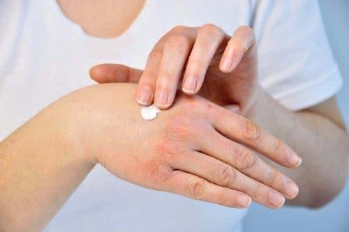 Tørre og sprukne hender er vanlig om vinteren.