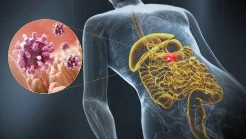 Lær om gastroenteritt, en akutt betennelsestilstand i fordøyelseskanalen