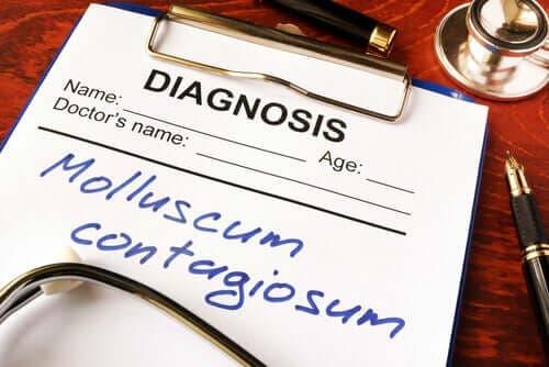 Hva er mollusker og hva bør du vite om denne infeksjonen?