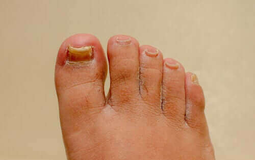 Fungerer preparater mot onykomykose på hendene og føttene?