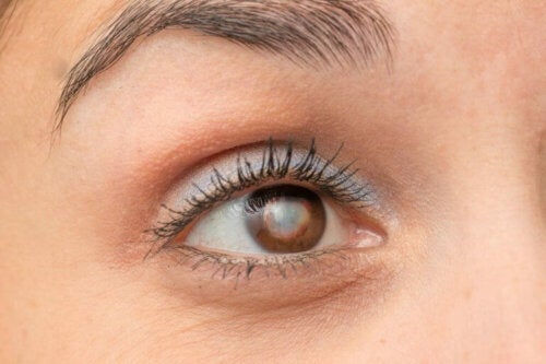 Et øye med grå stær