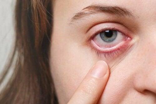 En kvinne som peker på øyet sitt.