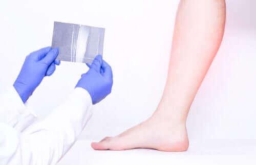 En medisinsk test av leggmuskulatur.