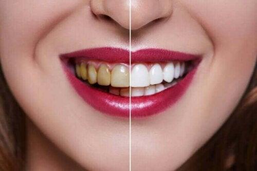 Kvinne med brune og hvite tenner.